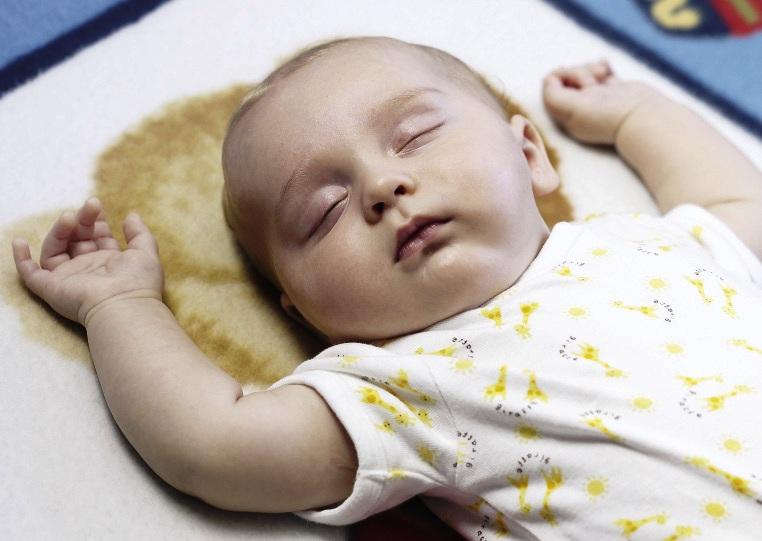 Младенец с генетическим отклонением